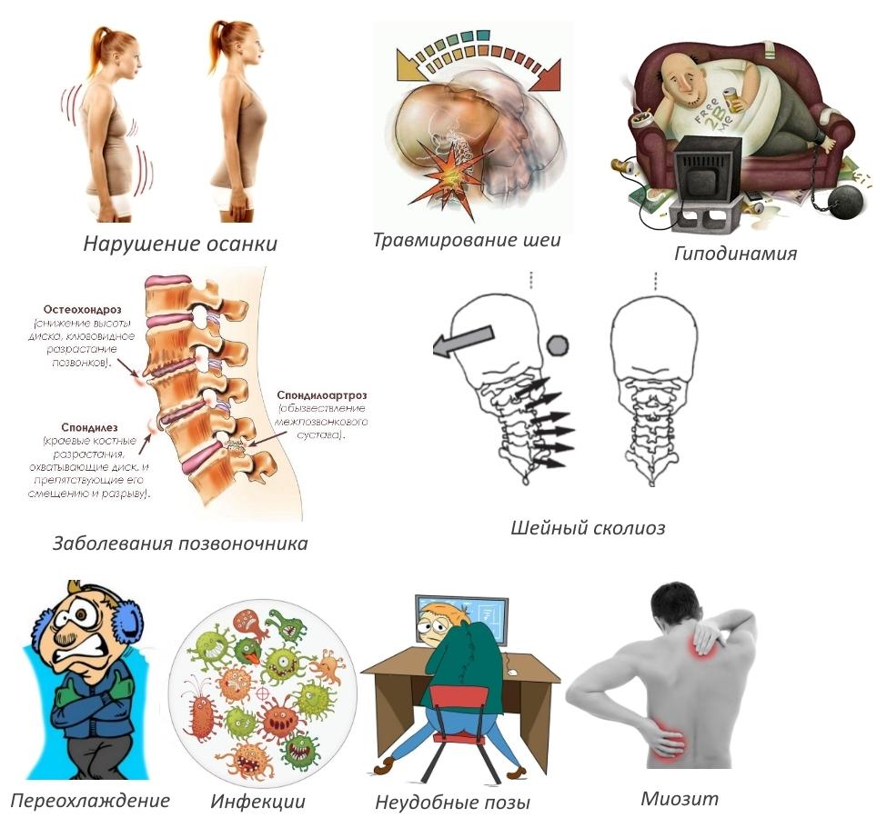 Частые причины протрузии шейного отдела позвоночника