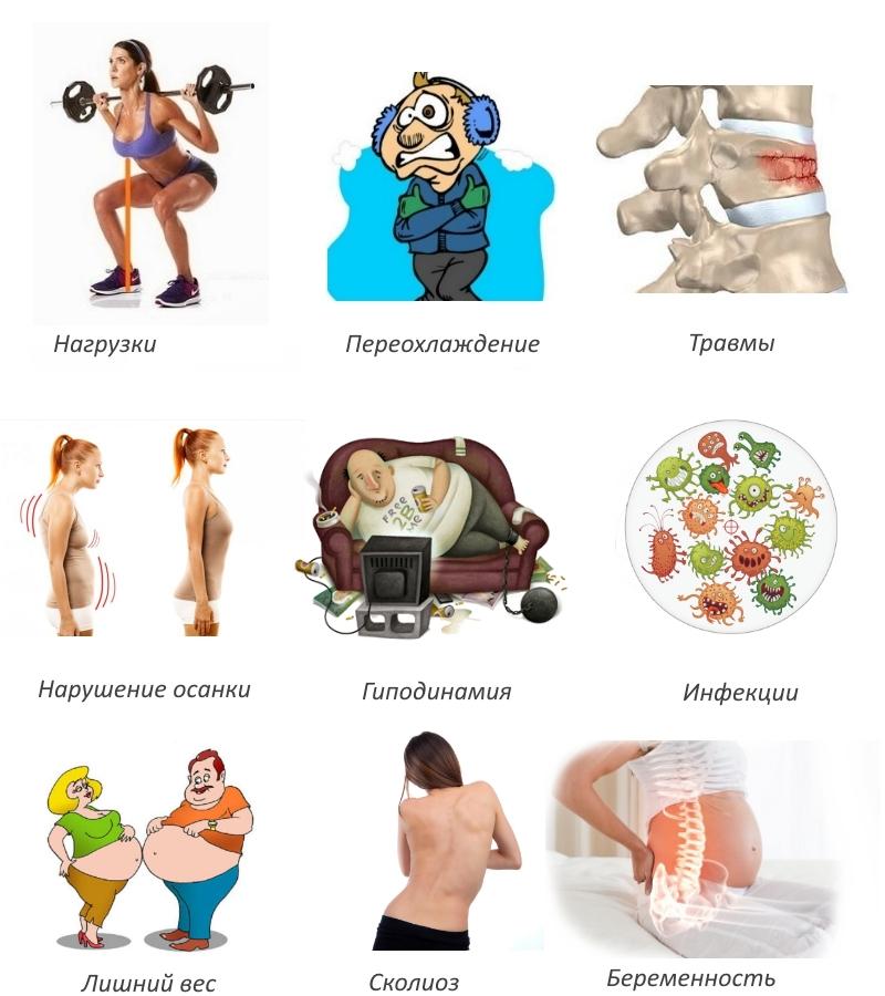 Причины радикулопатии