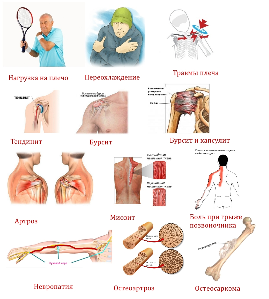Причины болезненных ощущений