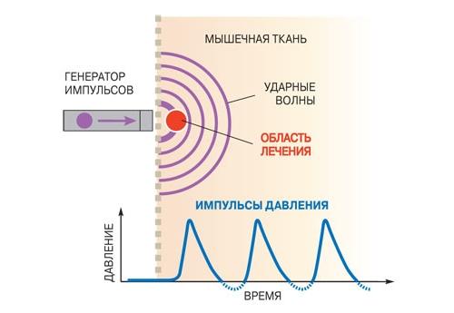 Принцип действия ударно-волновой терапии