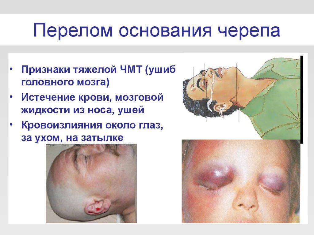 Признаки перелома основания черепа