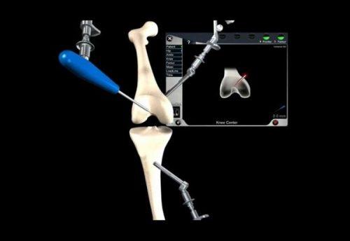 Проксимальная остеотомия