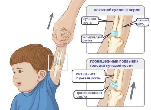 Подвывих головки лучевой кости у ребенка