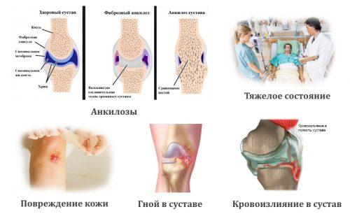 Противопоказания к артроскопии колена