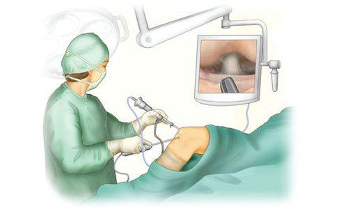 Артроскопический лаваж коленного сустава
