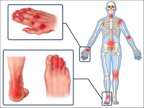 Схема псориатического артрита