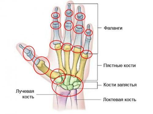 Распространение артроза пальцев рук