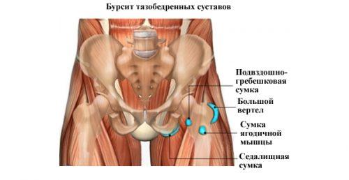 Распространение бурсита тазобедренного сустава