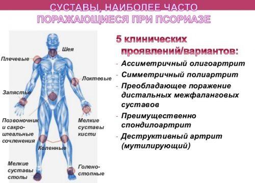Распространение псориатического артрита