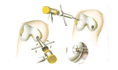 Оперативное лечение рассекающего остеохондрита