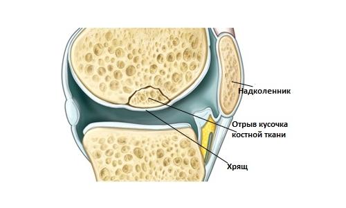 Рассекающий остеохондрит или болезнь Кенига