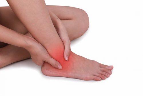 Растяжение связок голеностопных суставов