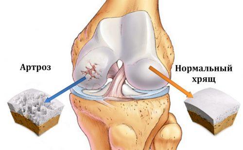 Разрушение колена при артрозе