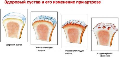 Разрушение сустава при артрозе