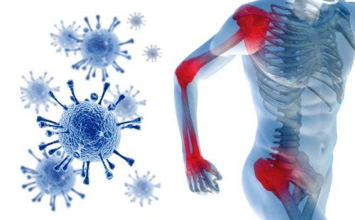 Реактивный полиартрит крупных суставов