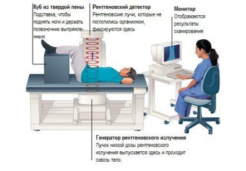Рентгеновская костная денситометрия
