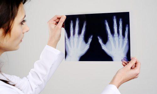 Рентген диагностика кисти