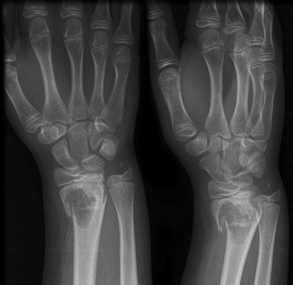 Перелом кисти руки на рентген снимке