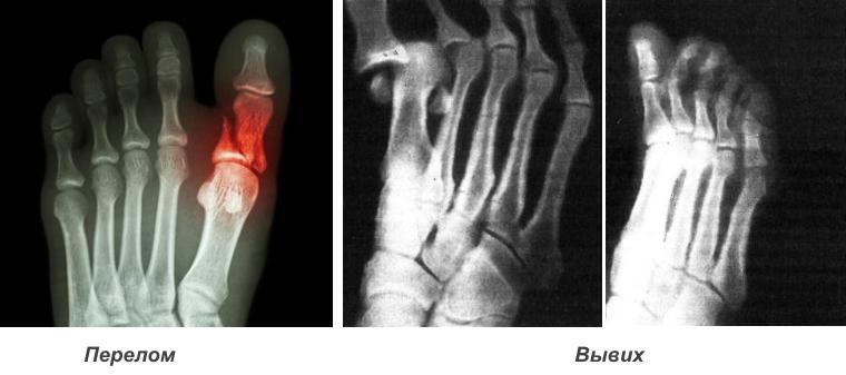 Рентген диагностика травм пальцев ног