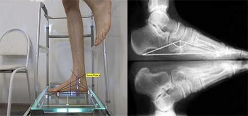 Рентген снимок стопы с нагрузкой