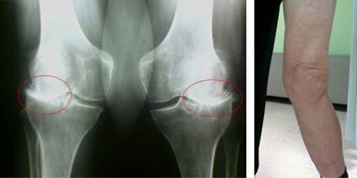 Артроз на рентгенограмме