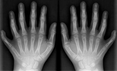 Рентгенограмма при полидактилии