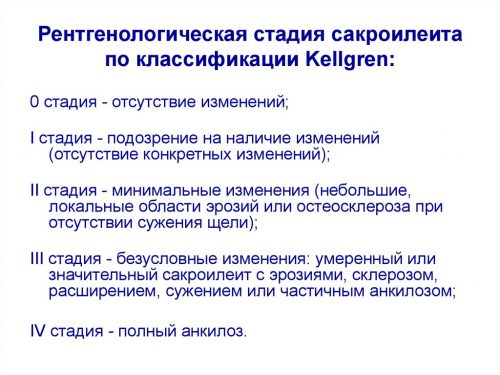 Рентгенологические стадии сакроилеита по классификации Kellgren