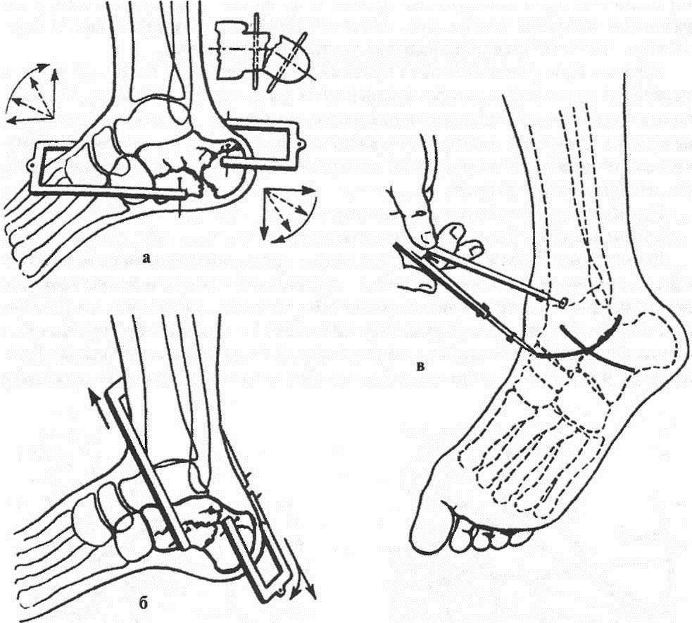 Репозиция отломков пяточной кости