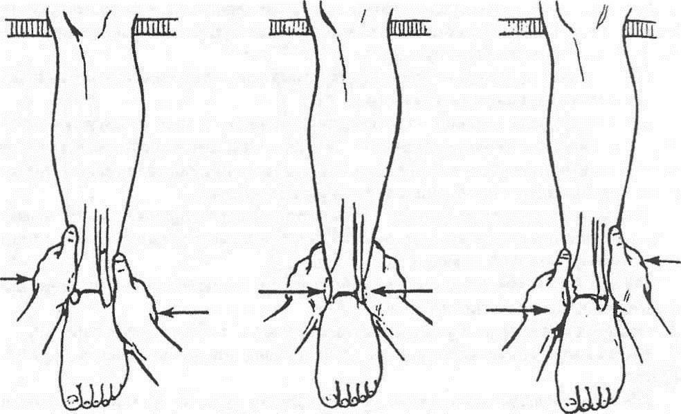 Репозиция при переломах лодыжек