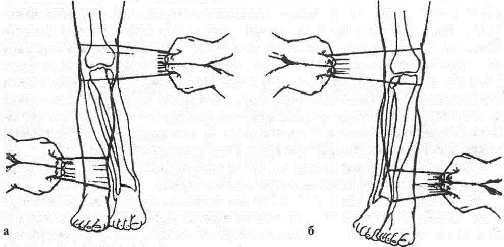 Репозиция при переломах мыщелков большеберцовой кости