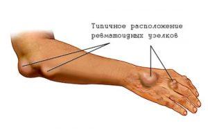 Ревматоидные узелки при артрите