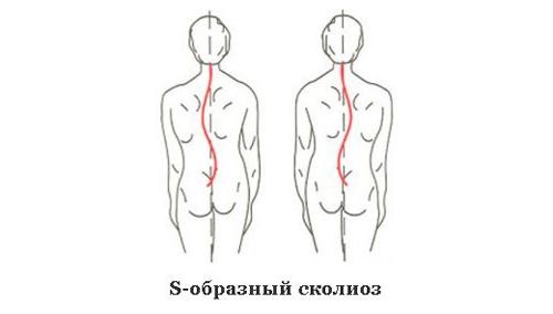 S-образный или комбинированный сколиоз