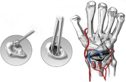 Оперативная пересадка здорового участка при болезни Кинбека