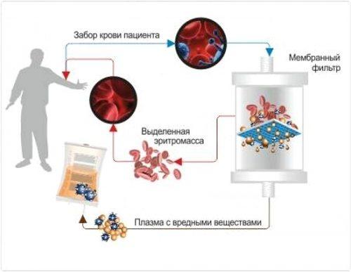 Схема процесса плазмафереза крови