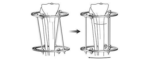Схема ротационной коррекции в аппарате Илизарова