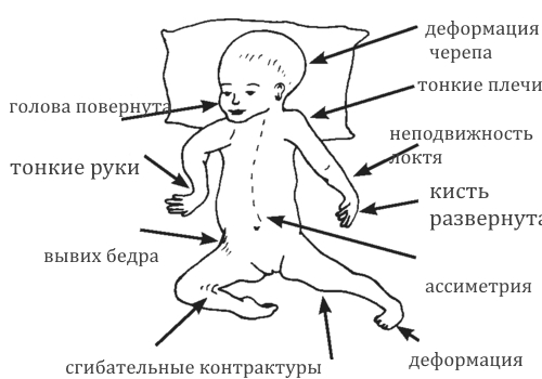 Симптомы Артрогрипоза