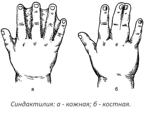 Синдактилия кожная и костная