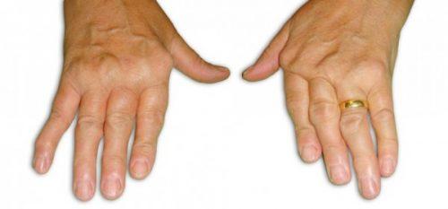 Изменения при синдроме Фелти