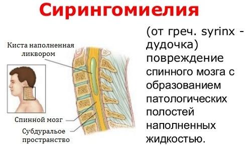 Суть сирингомиелии