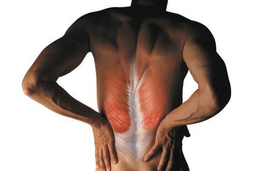 Возникновение спазма мышц спины