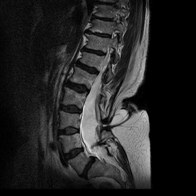 Спина Бифида на МРТ