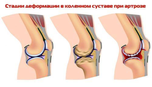 Стадии деформации коленного сустава при артрозе