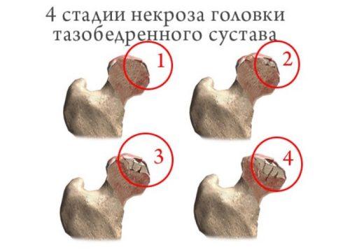 Стадии некроза головки бедренной кости