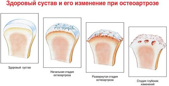 Степени разрушения сустава при остеоартрозе