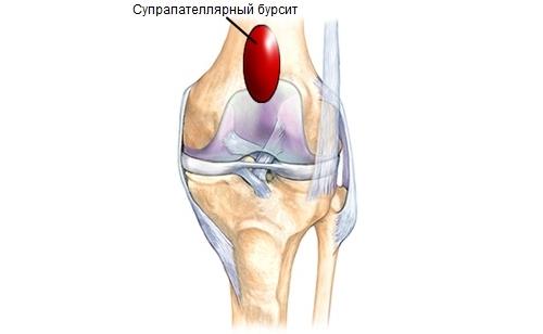 Проблема супрапателлярного бурсита коленного сустава