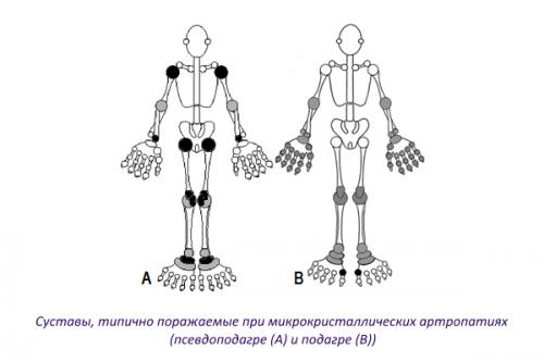 Суставы, типично поражаемые при подагре и псевдоподагре