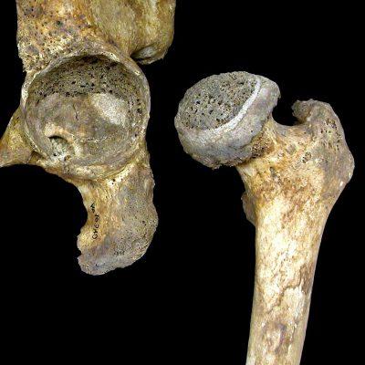 Тазобедренный сустав, пораженный артрозом