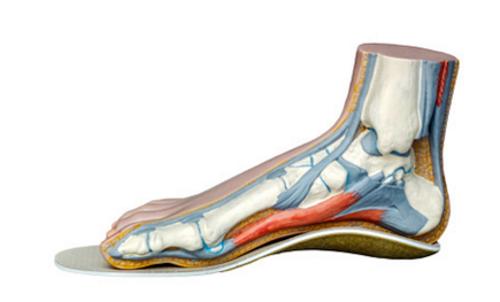 Тендинит сухожилий стопы