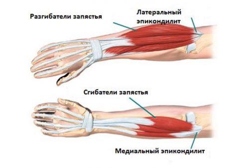 Схема тендинита локтевого сустава