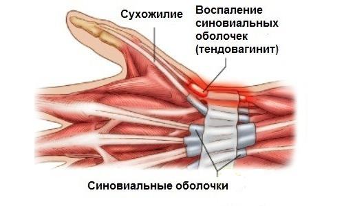 Тендовагинит сухожилий и оболочек